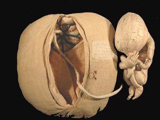 Mme du COUDRAY (foetus de 7 mois et sa matrice)